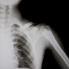 Sports Injuries – HGH Speeds Up Shoulder Injury Healing