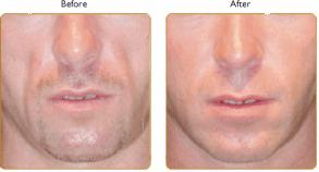What Is Sculptra Hgh Anti Aging Blog