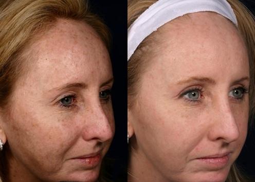 What Is Fractional Laser Skin Resurfacing Hgh Anti