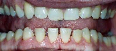 Acromegaly  Teeth Gapping HGH overdose